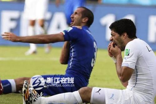 世界杯苏亚雷斯咬人解读:牙齿矫正没做好啊