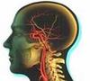 脑卒中患者50岁以下的已占1/3