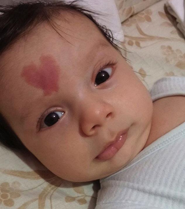 """有个心形胎记的土耳其男孩成""""网红"""""""