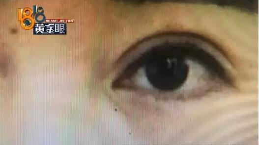去杭州格莱美医疗美容医院花1万多割双眼皮 结果天天被人